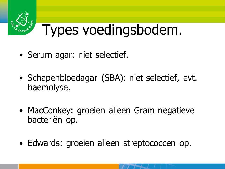 Types voedingsbodem. Serum agar: niet selectief.