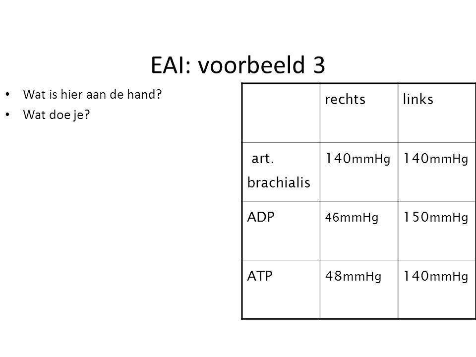 EAI: voorbeeld 3 Wat is hier aan de hand Wat doe je rechts links