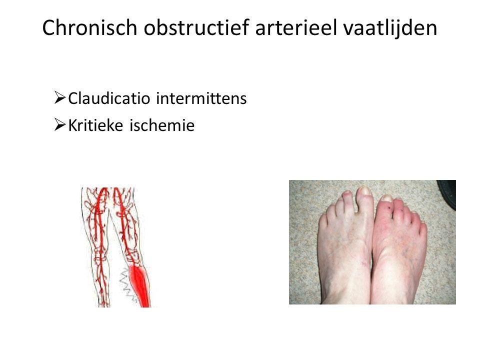 Chronisch obstructief arterieel vaatlijden