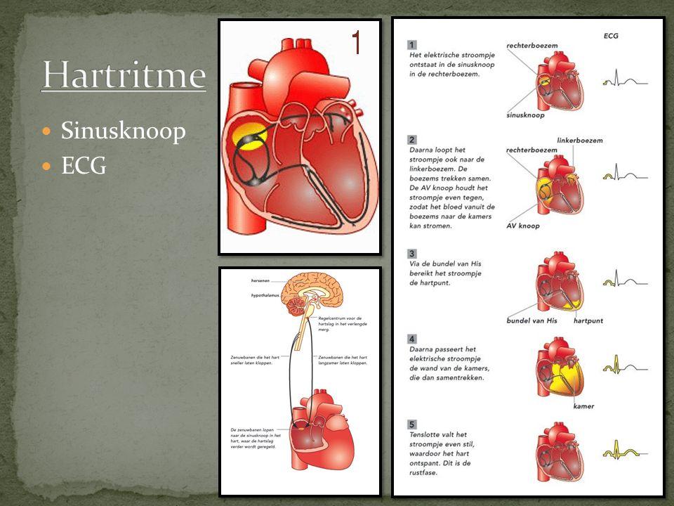 Hartritme Sinusknoop ECG