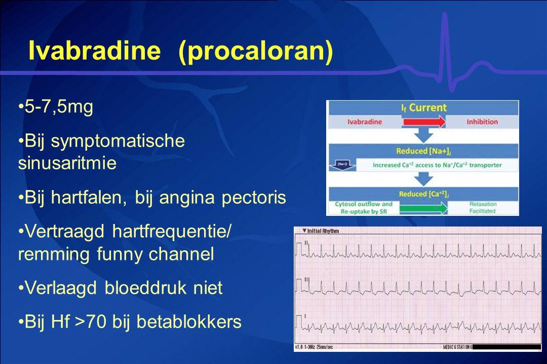 Ivabradine (procaloran)