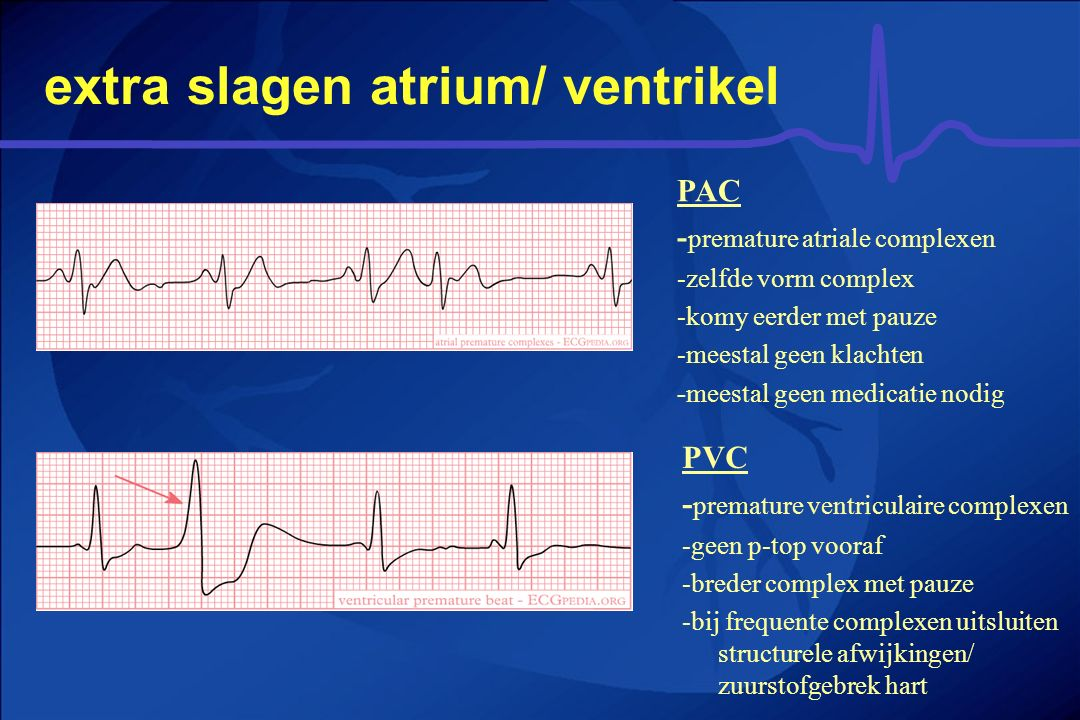 extra slagen atrium/ ventrikel
