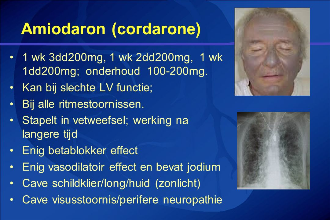 Amiodaron (cordarone)