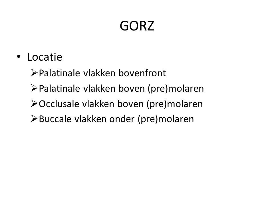 GORZ Locatie Palatinale vlakken bovenfront