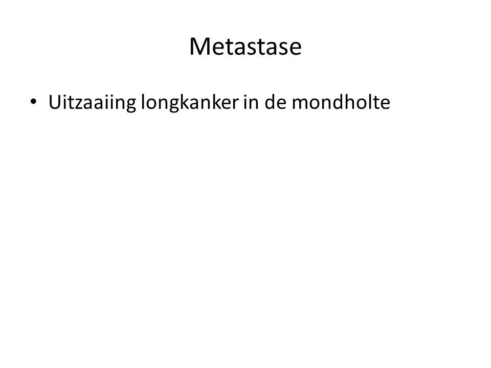 Metastase Uitzaaiing longkanker in de mondholte