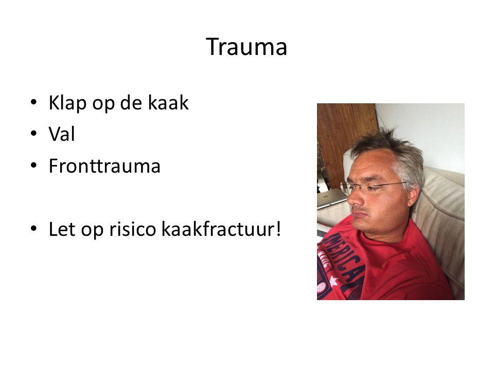 Trauma Klap op de kaak Val Fronttrauma Let op risico kaakfractuur!
