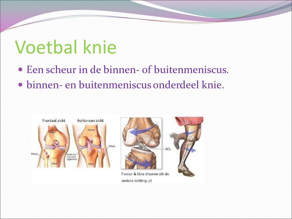 Voetbal knie Een scheur in de binnen- of buitenmeniscus.