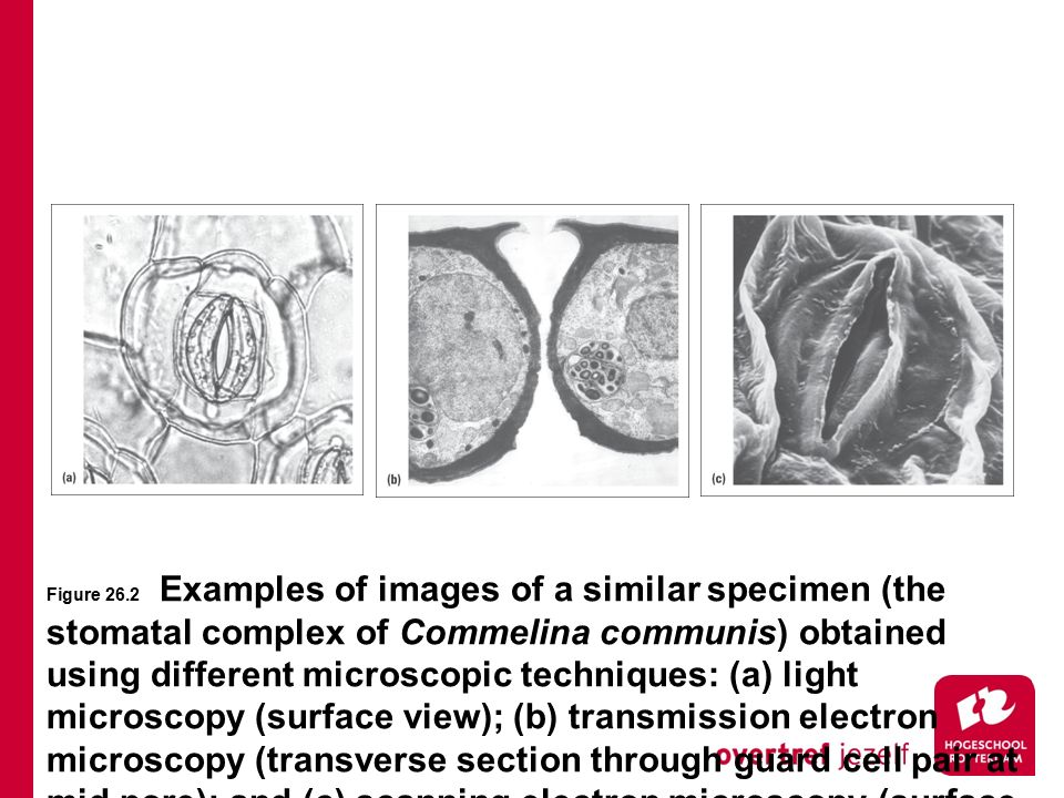 Figure 26.2 Examples of images of a similar specimen (the stomatal complex of Commelina communis) obtained using different microscopic techniques: (a) light microscopy (surface view); (b) transmission electron microscopy (transverse section through guard cell pair at mid pore); and (c) scanning electron microscopy (surface view).