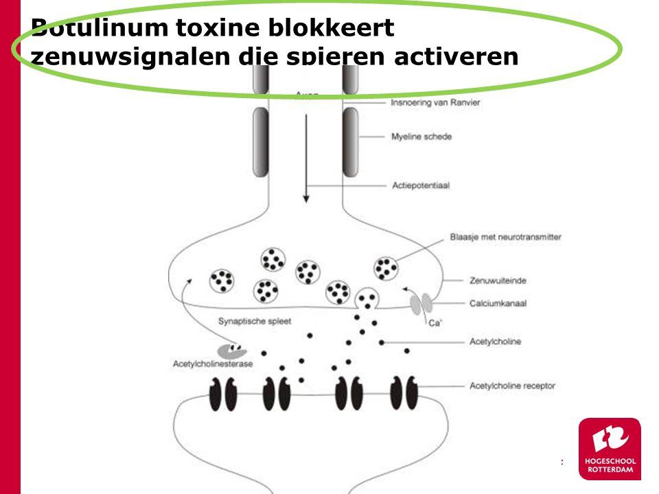 Botulinum toxine blokkeert zenuwsignalen die spieren activeren