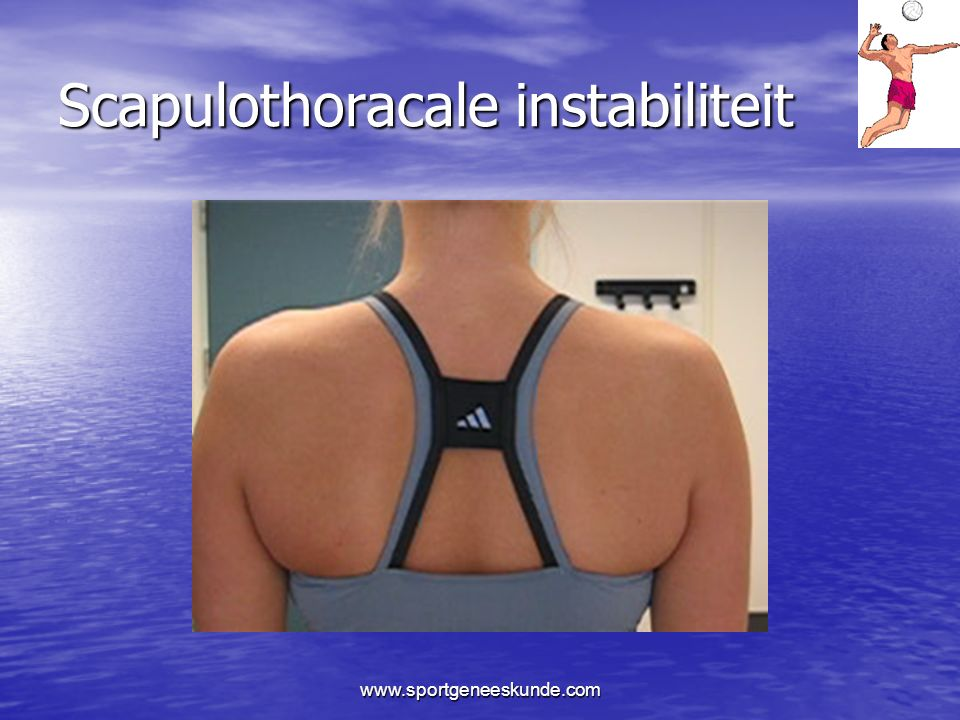 Scapulothoracale instabiliteit