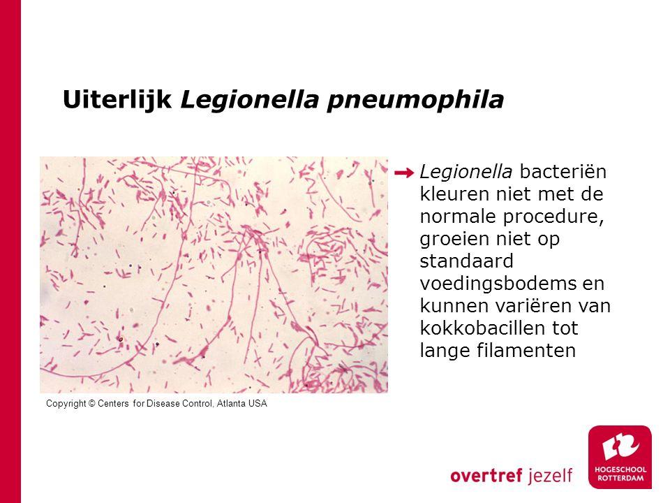 Uiterlijk Legionella pneumophila