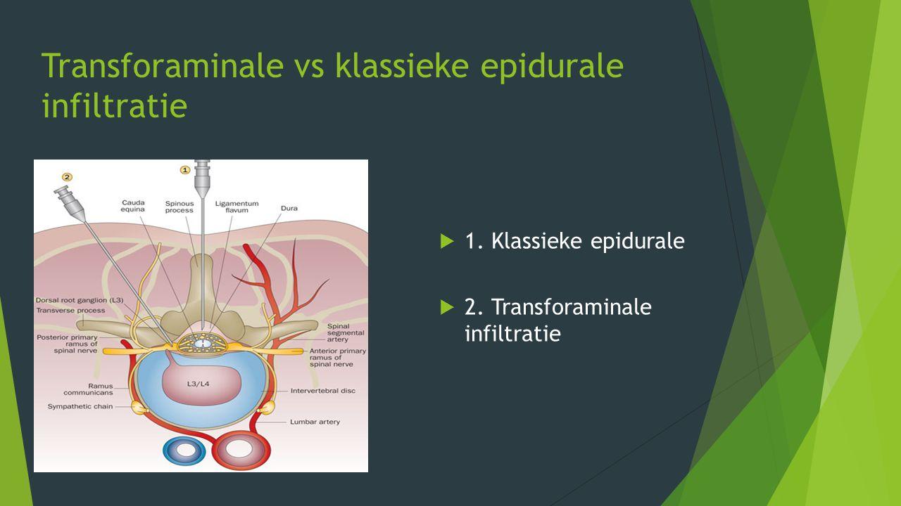 Transforaminale vs klassieke epidurale infiltratie