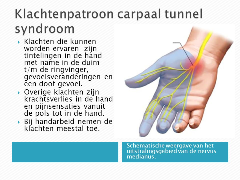 Klachtenpatroon carpaal tunnel syndroom