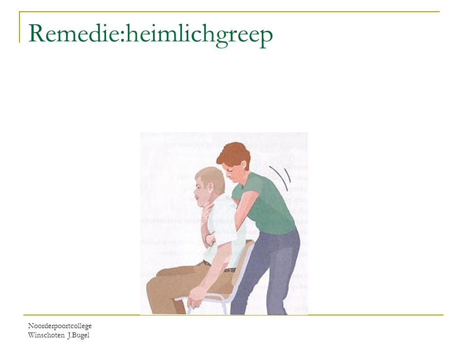 Remedie:heimlichgreep