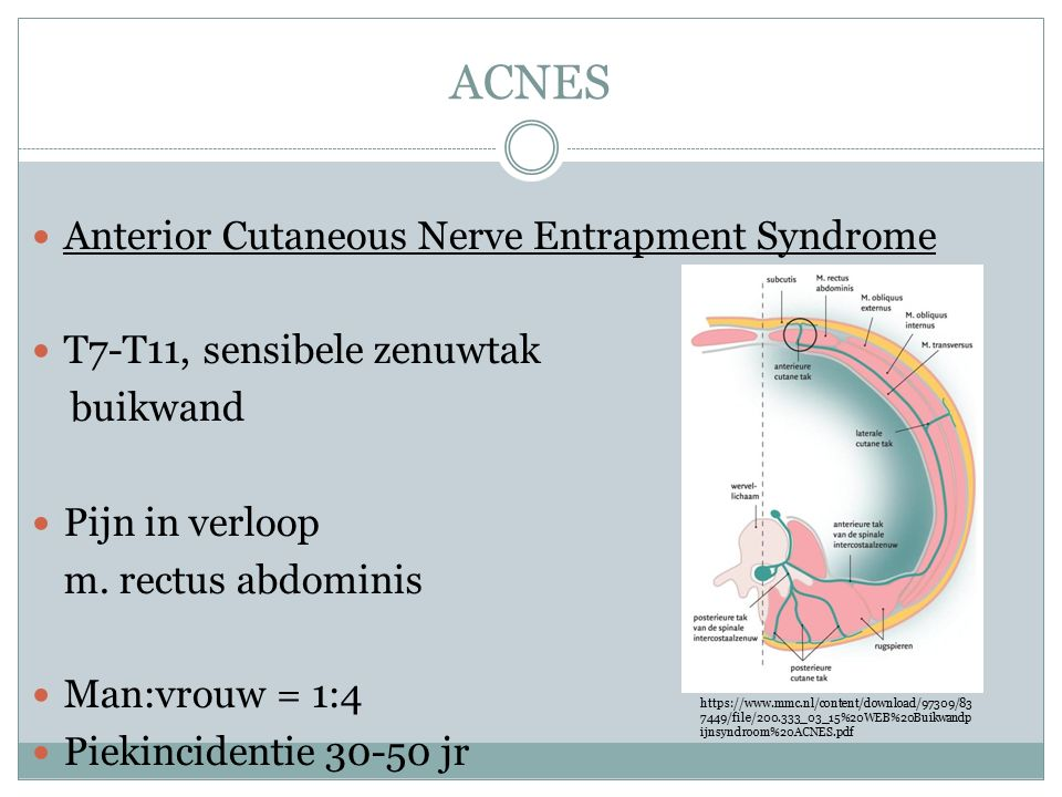 ACNES Anterior Cutaneous Nerve Entrapment Syndrome