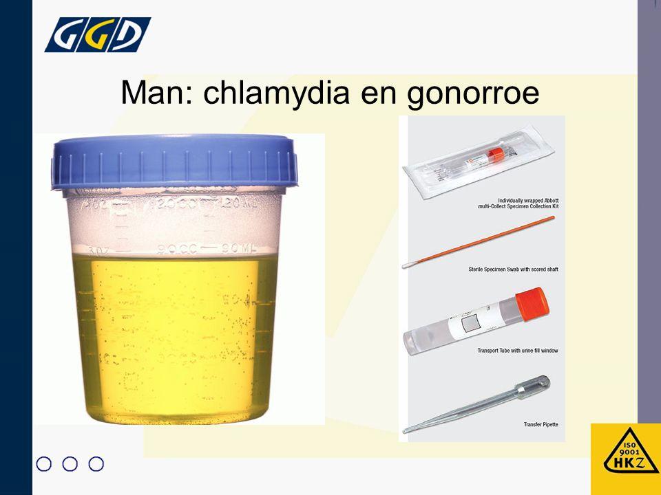 Man: chlamydia en gonorroe