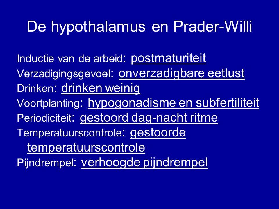 De hypothalamus en Prader-Willi