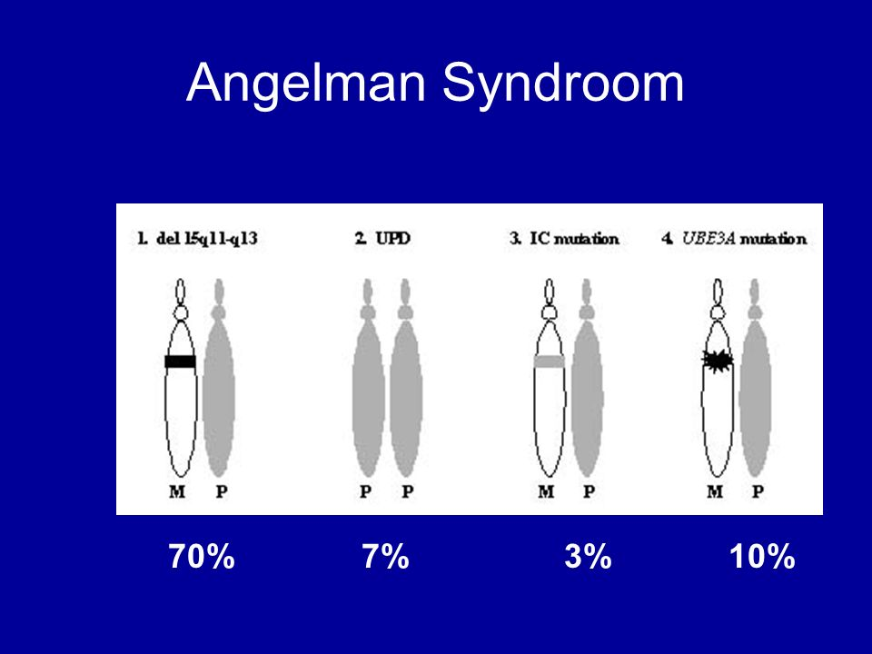 Angelman Syndroom 70% 7% 3% 10%