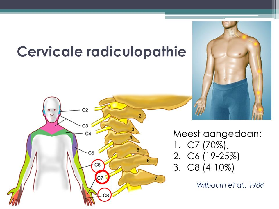 Cervicale radiculopathie