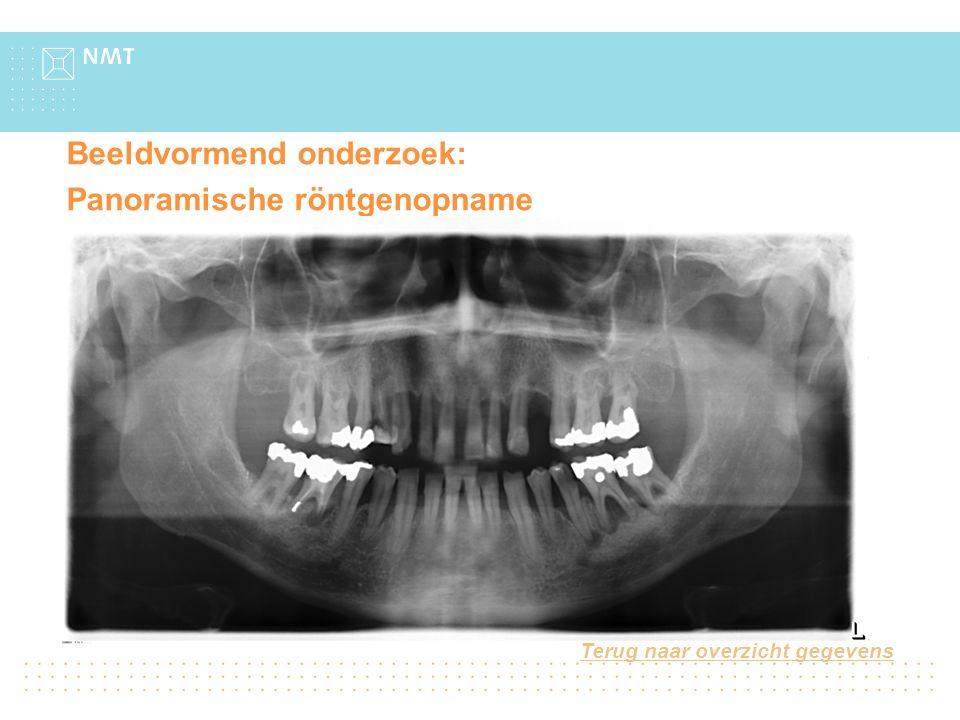 Beeldvormend onderzoek: Panoramische röntgenopname