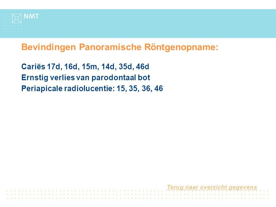 Bevindingen Panoramische Röntgenopname: