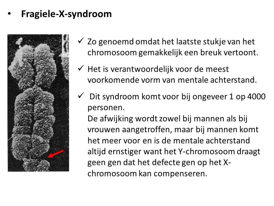Fragiele-X-syndroom Zo genoemd omdat het laatste stukje van het chromosoom gemakkelijk een breuk vertoont.