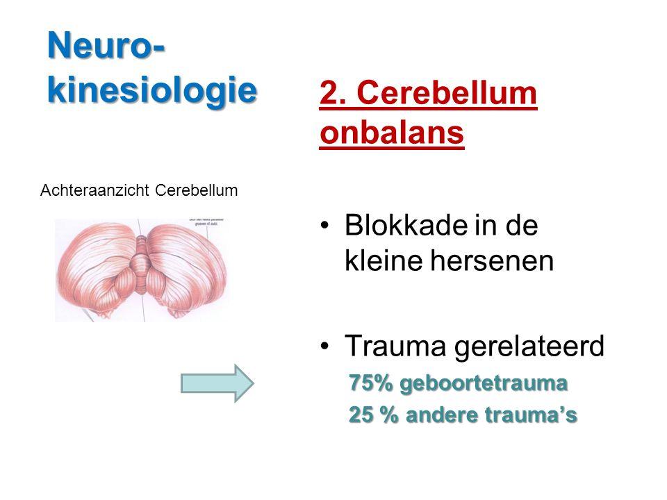 Neuro-kinesiologie 2. Cerebellum onbalans