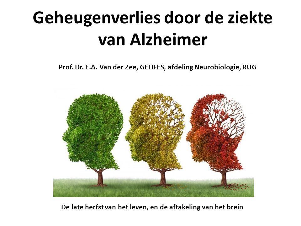 Geheugenverlies door de ziekte van Alzheimer