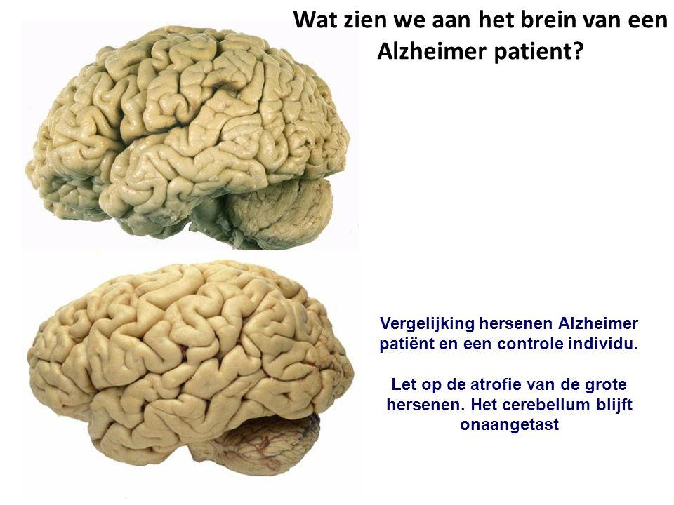 Wat zien we aan het brein van een