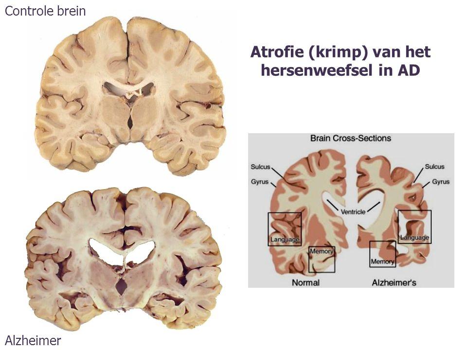 Atrofie (krimp) van het hersenweefsel in AD