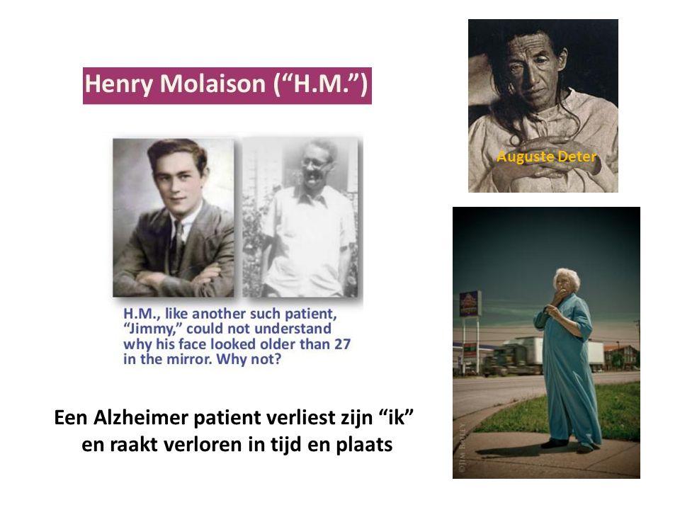 Een Alzheimer patient verliest zijn ik
