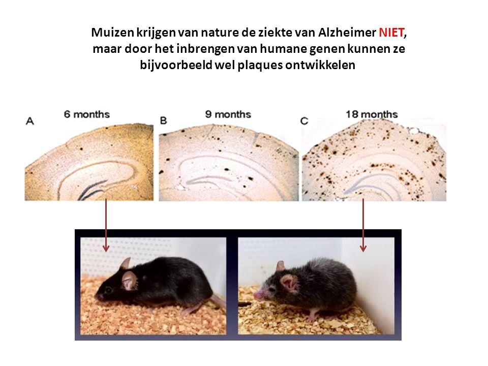 Muizen krijgen van nature de ziekte van Alzheimer NIET,