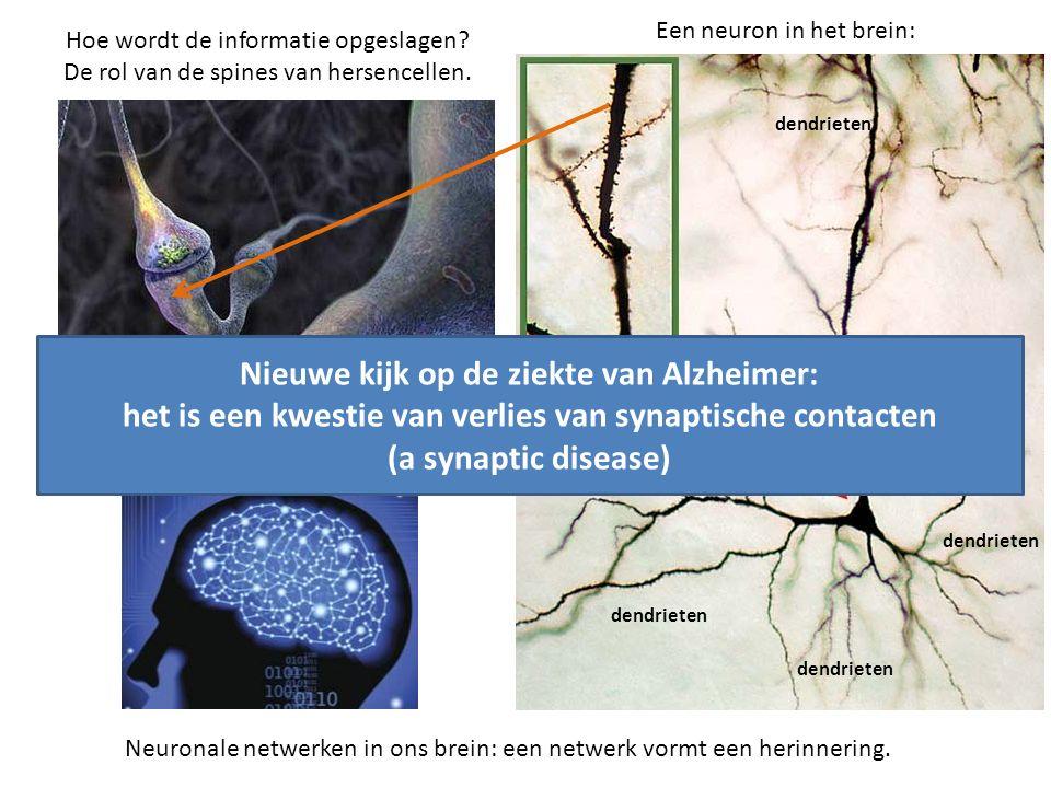 Nieuwe kijk op de ziekte van Alzheimer: