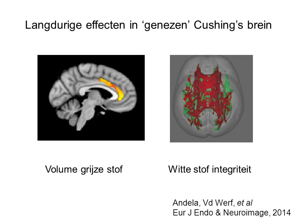Langdurige effecten in 'genezen' Cushing's brein