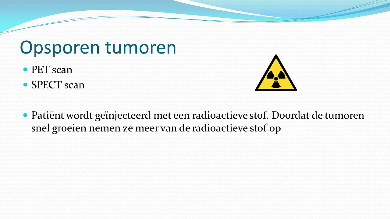Opsporen tumoren PET scan SPECT scan