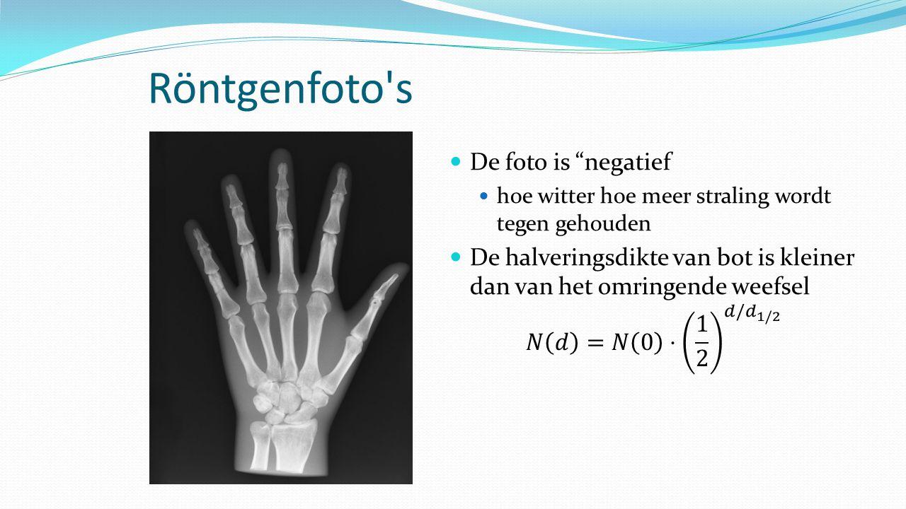 Röntgenfoto s De foto is negatief
