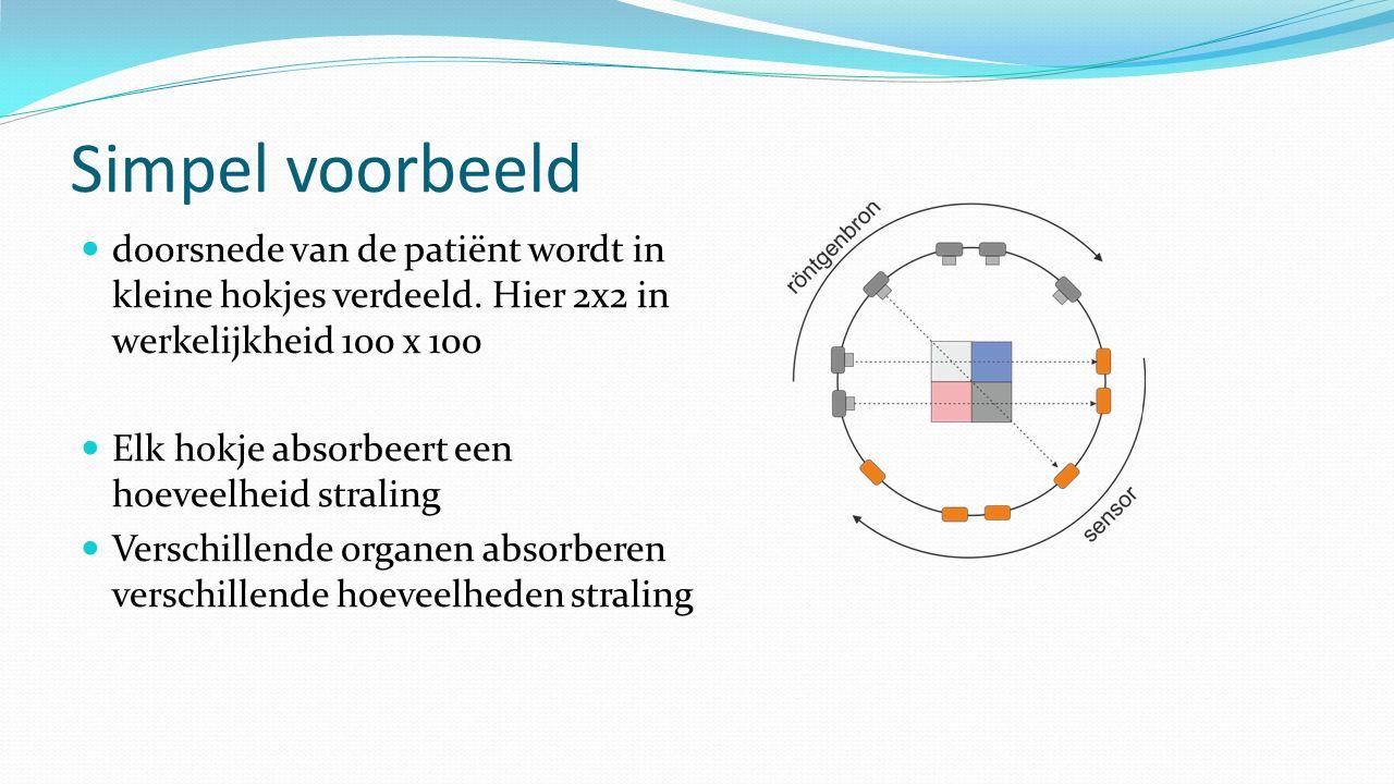 Simpel voorbeeld doorsnede van de patiënt wordt in kleine hokjes verdeeld. Hier 2x2 in werkelijkheid 100 x 100.