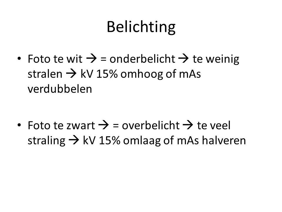 Belichting Foto te wit  = onderbelicht  te weinig stralen  kV 15% omhoog of mAs verdubbelen.