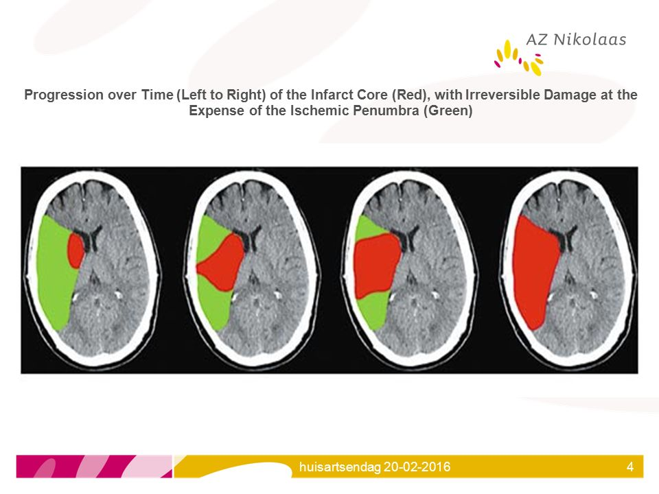 Progression over Time (Left to Right) of the Infarct Core (Red), with Irreversible Damage at the Expense of the Ischemic Penumbra (Green)