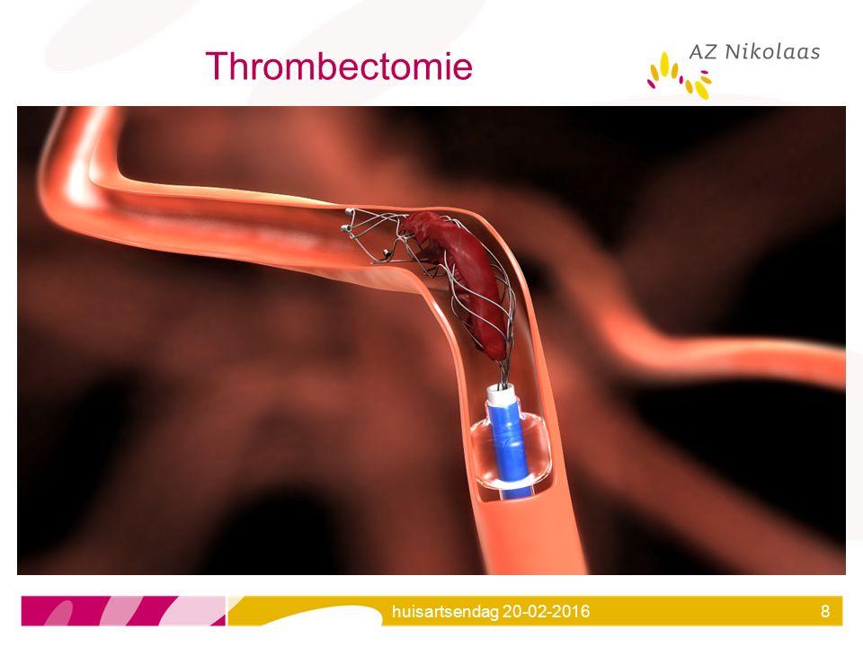 Thrombectomie huisartsendag 20-02-2016