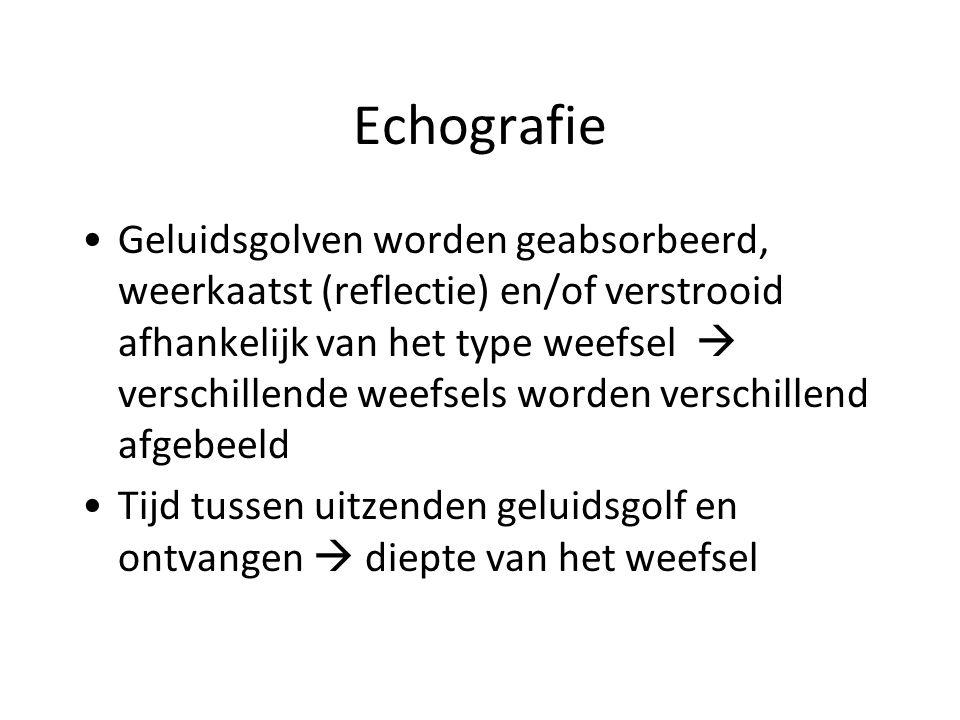 Echografie Terminologie