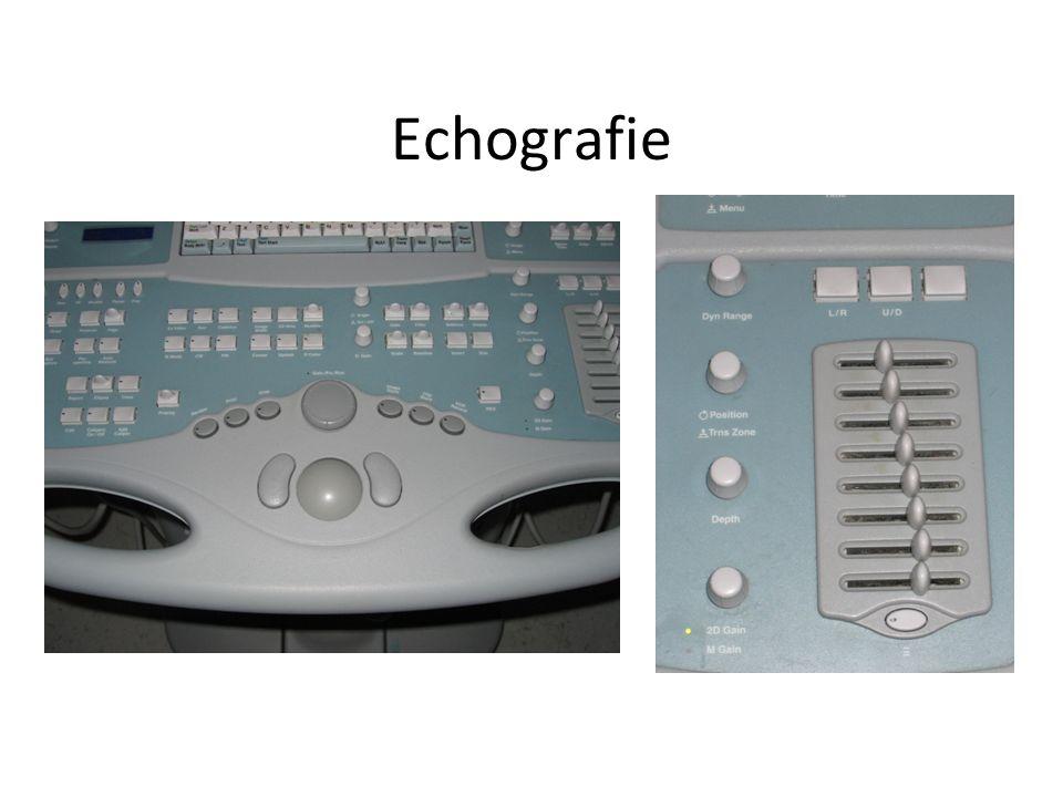 Echografie Voorbereiding patiënt