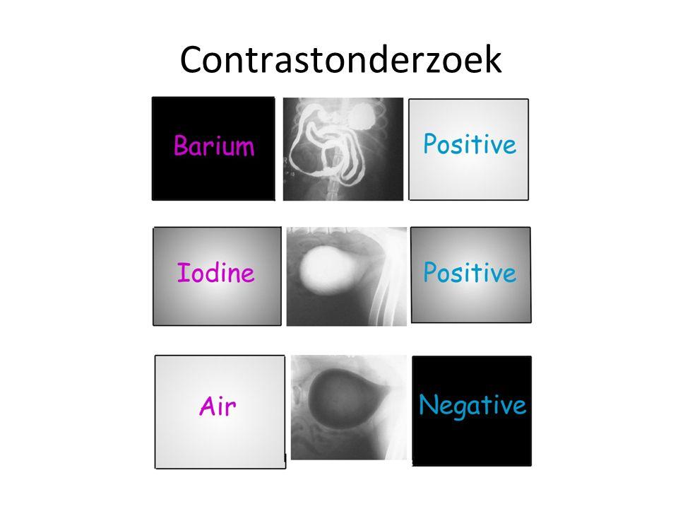 Contrastonderzoek Positief vs Negatief contrast