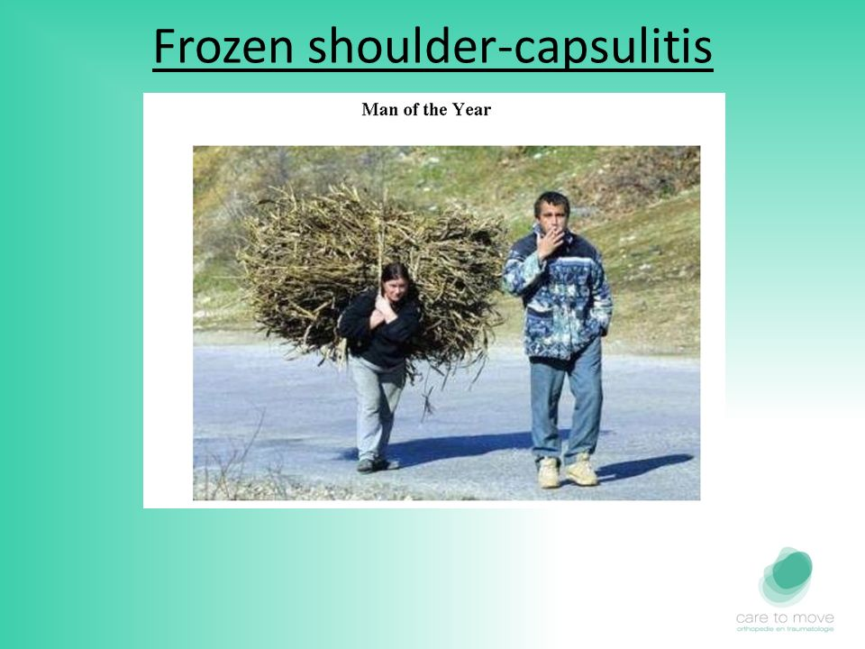 Frozen shoulder-capsulitis