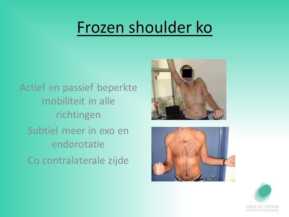 Frozen shoulder ko Actief en passief beperkte mobiliteit in alle richtingen. Subtiel meer in exo en endorotatie.