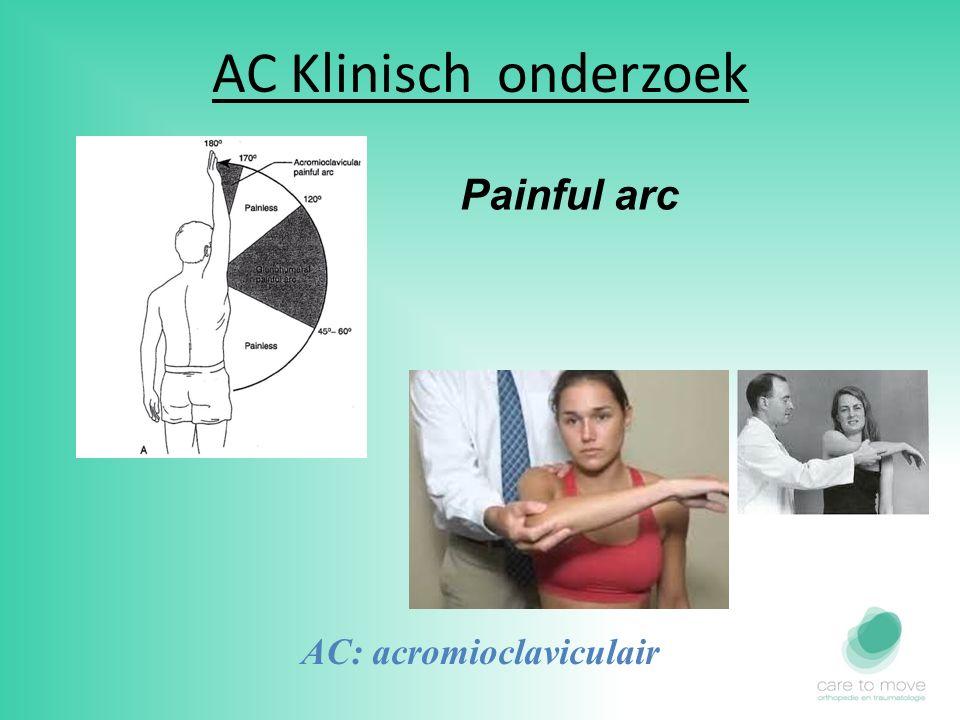 AC Klinisch onderzoek Painful arc AC: acromioclaviculair