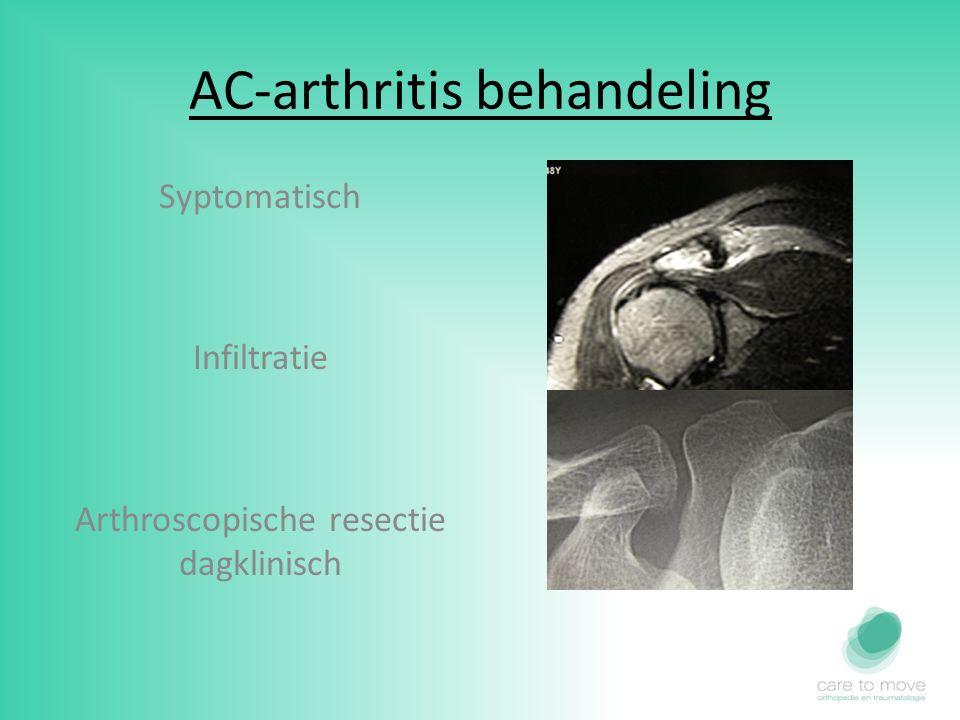 AC-arthritis behandeling