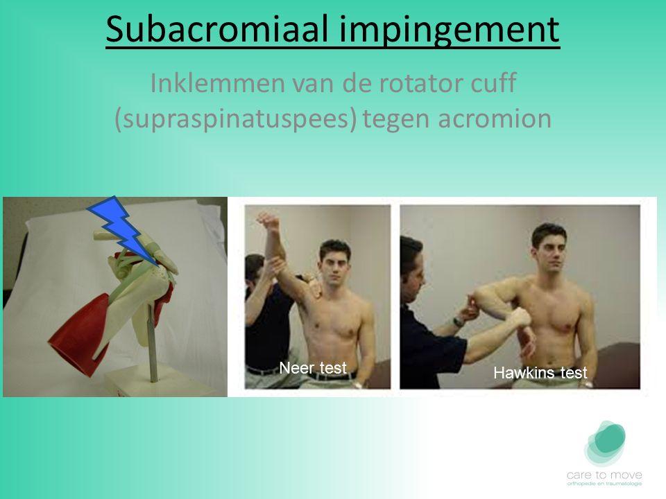 Subacromiaal impingement