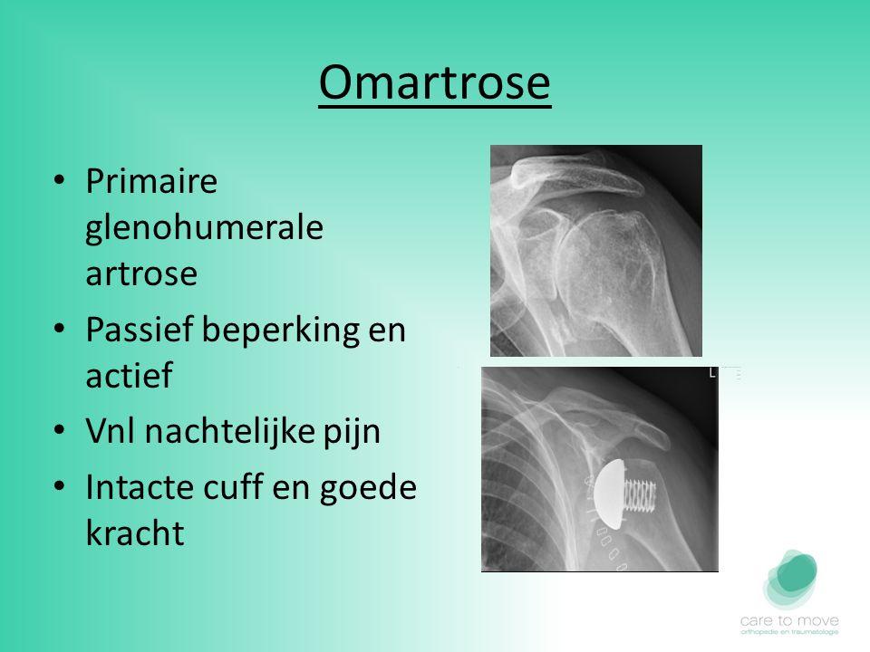 Omartrose Primaire glenohumerale artrose Passief beperking en actief