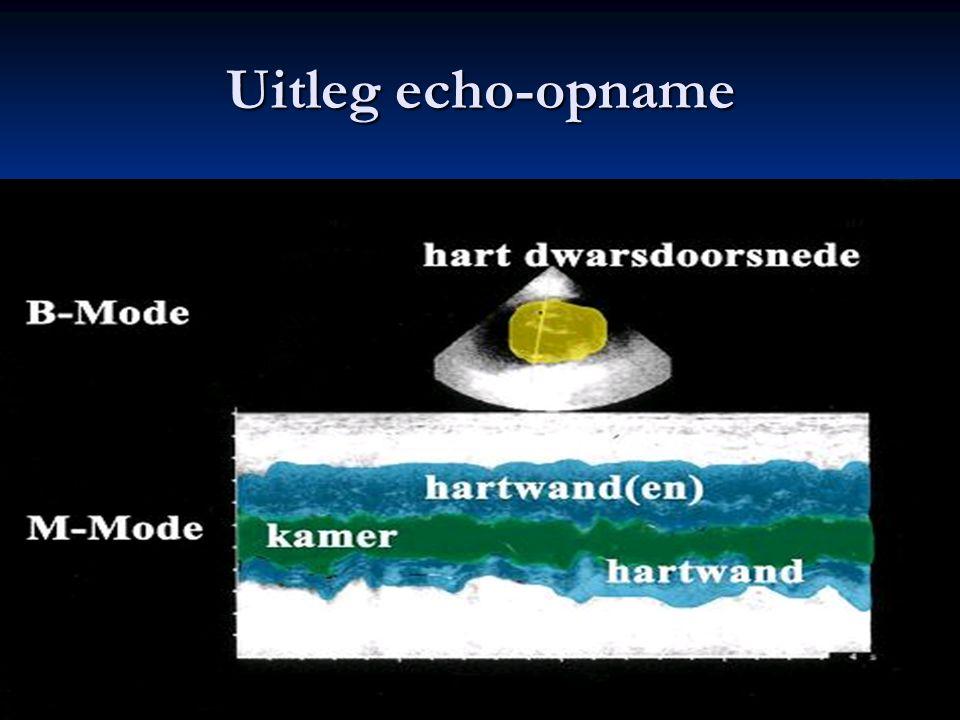 Uitleg echo-opname